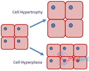 Comment on the Difference between Hypertrophy and Hyperplasia.